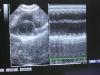 cardiomiopatia felina